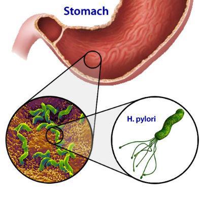 Risultati immagini per gse helicobacter pylori